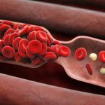 Study Shows: Blood Clot Risk Linked To Height